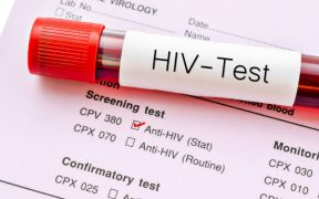 Hiv test aanschaffen